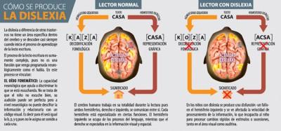 como se produce la dislexia infografia